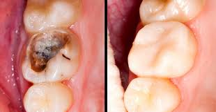 Can You Reverse Tooth Decay