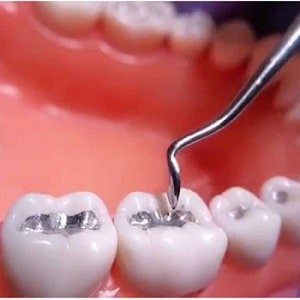 Is Tooth Filling painful