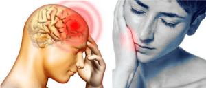 Toothache Causing Headache and Eye Pain